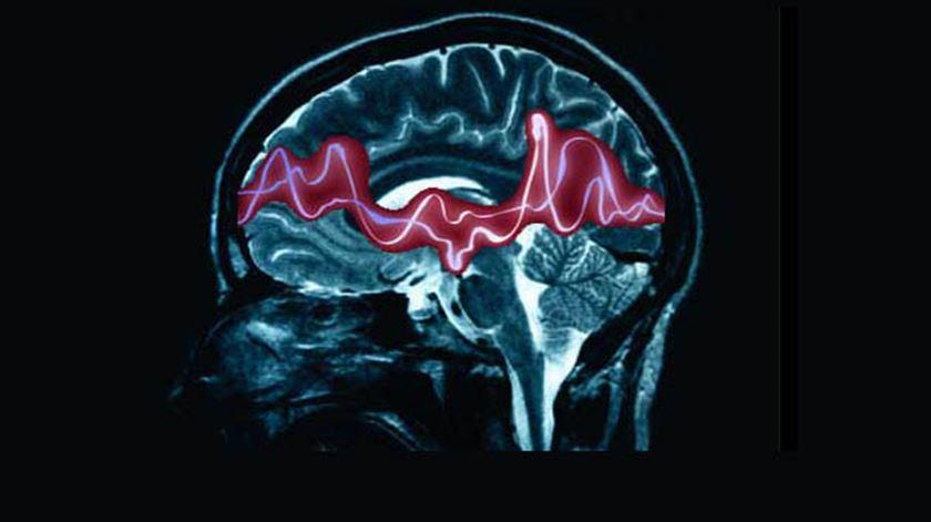Epilepsia. Doente do Porto foi o primeiro no mundo a testar neuroestimulador em contínuo