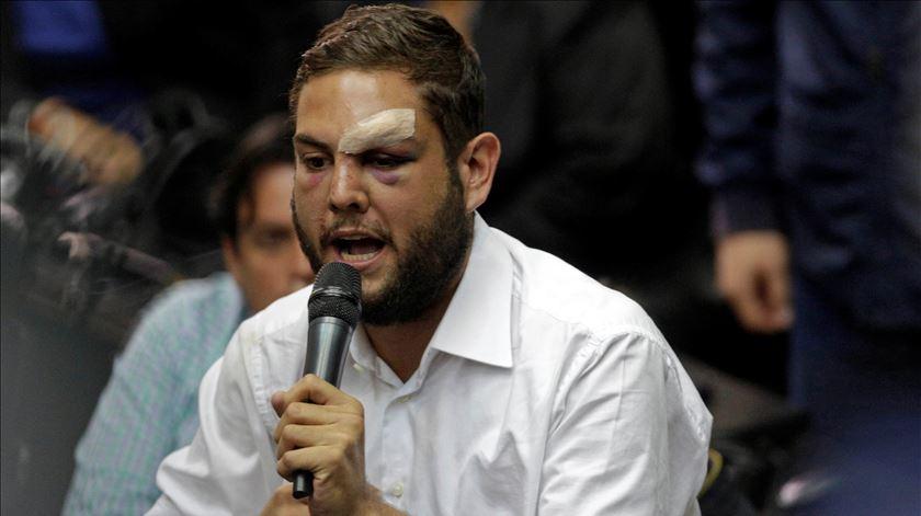 Juan Requesens foi detido a 4 de agosto. Foto: Marco Bello/Reuters