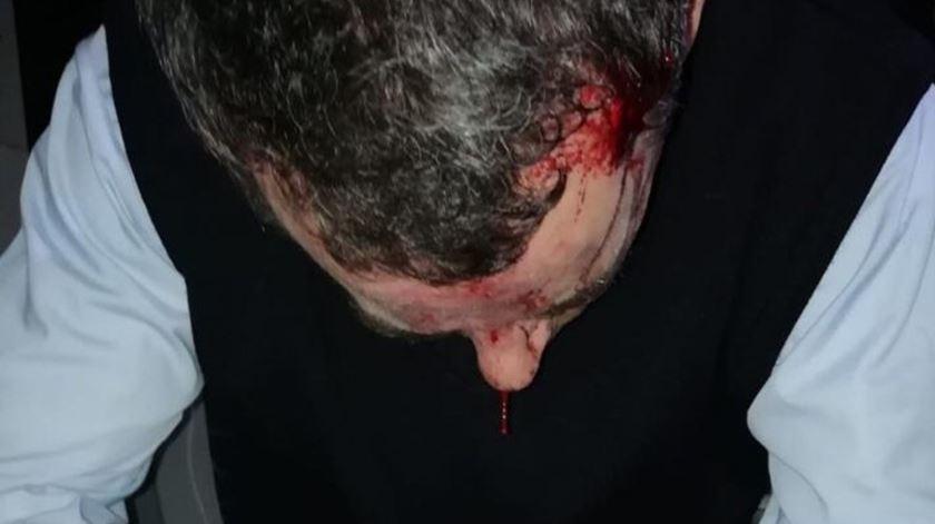 Agredido com gravidade motorista que denunciou Cláudia Simões à polícia