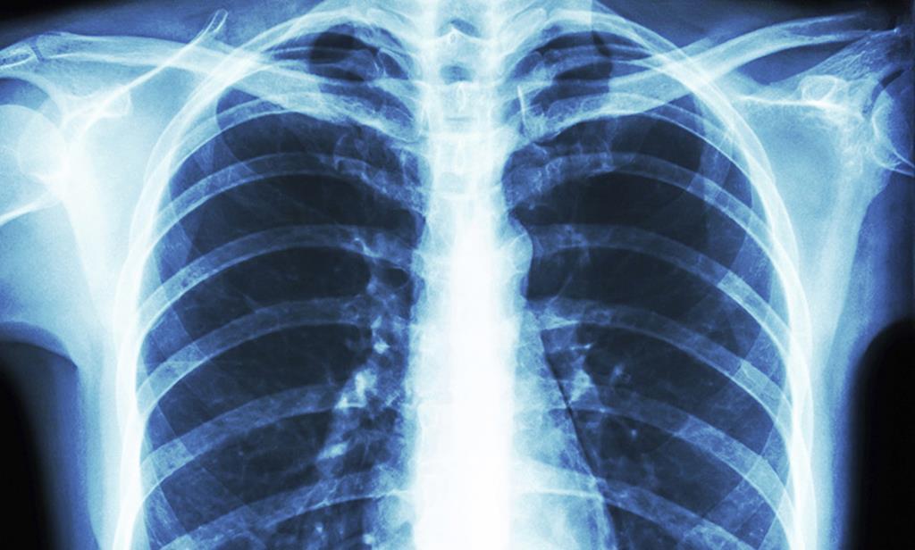 Pessoas com problemas respiratórios são particularmente sensíveis à Covid-19. Foto: DR