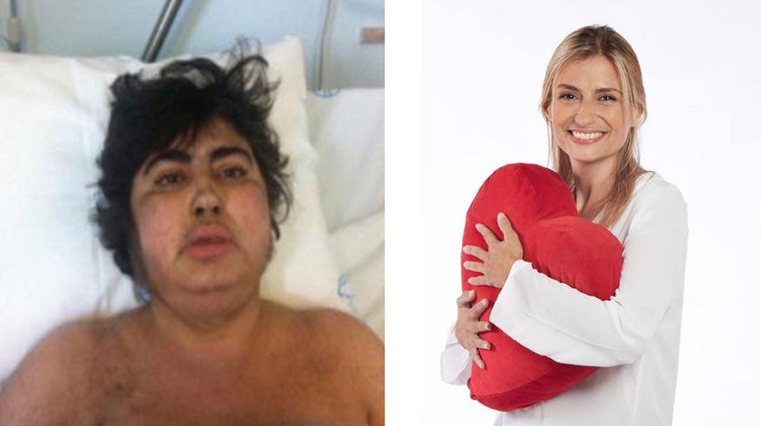 Após o transplante de medula, Sofia Lisboa ficou irreconhecível